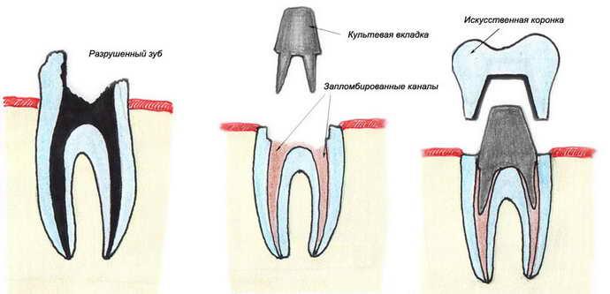 Оксид алюминия коронки для зубов
