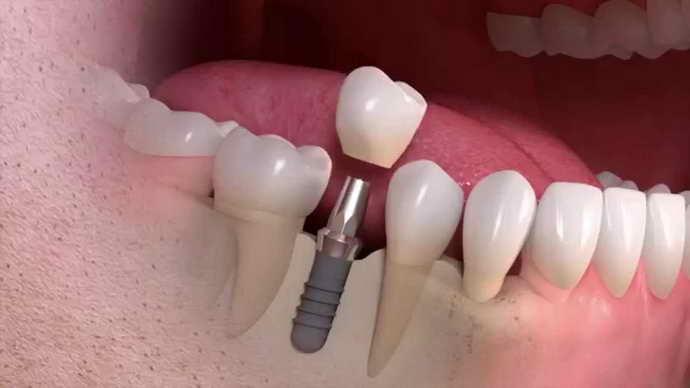 Восстановление единичных зубов проводится с помощью имплантации
