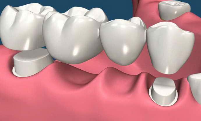 Методы протезирования зубов с помощью мостов