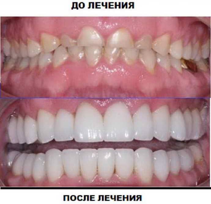 Виниры и люминиры можно условно отнести к одному из видов протезирования зубов