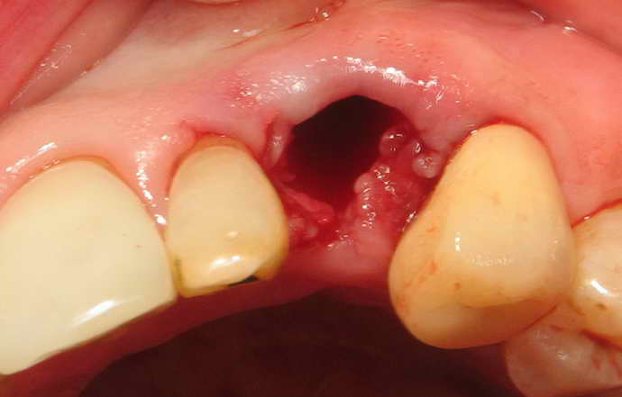 полное отсутствие зуба, включая корень