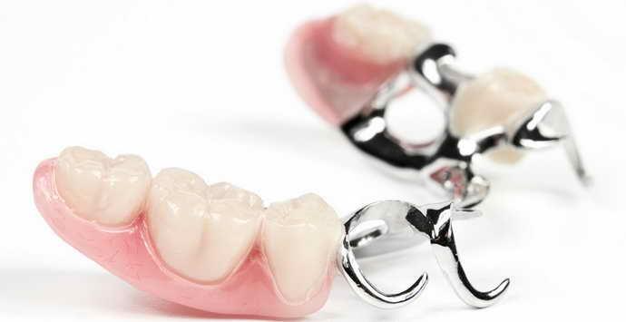 Бюгельные виды зубных протезов