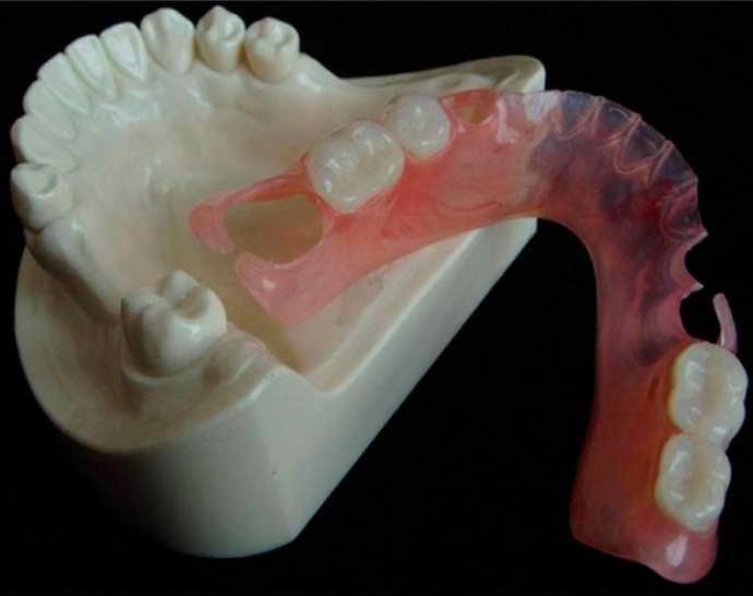 Нейлоновые изделия для зубов