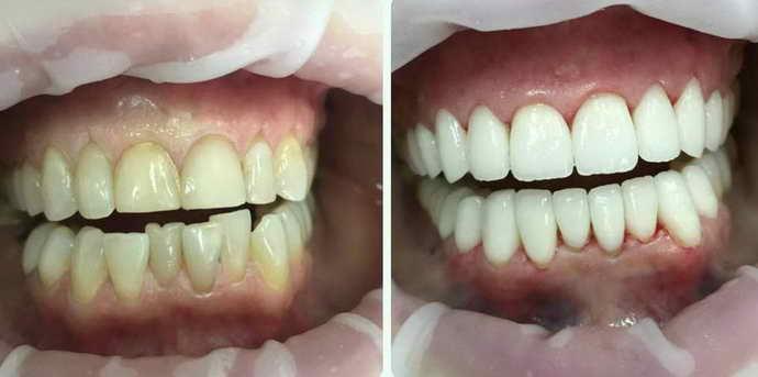 Придание ровного вида незначительно искривлённым зубам передней линии винирами