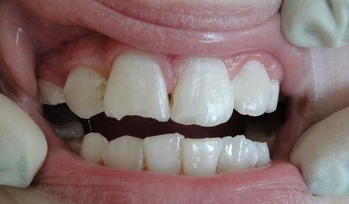 Нарушение режущего края зуба и виниры