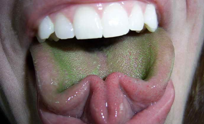 Зеленый налет на языке