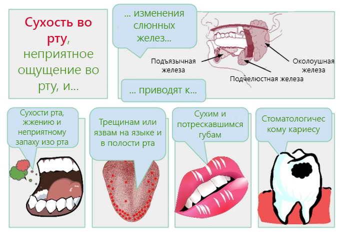 Налету языка также может сопутствовать сухость во рту