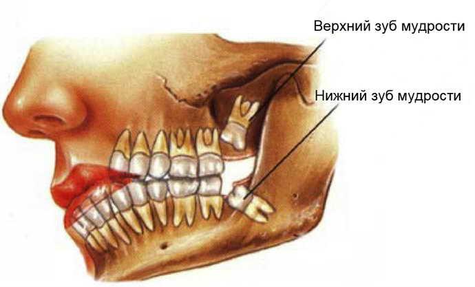 что такое зубы мудрости