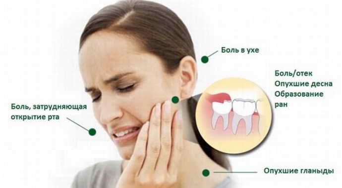 Прорезывание зубов мудрости без осложнений